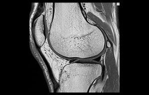 magnetna rezonanca_koleno