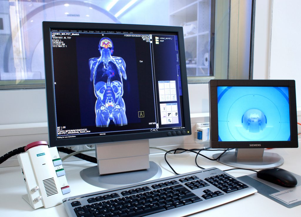 Samoinicijativni pregled magnetnom rezonancom_penumbra_dijagnosticki_centar